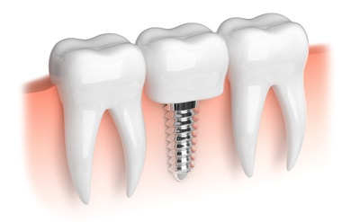 dental implant001