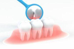 かかりつけ歯科医院を持ちましょう