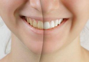 ホワイトニングをやる上で疑問に思うこと~白くなりにくい歯がある?~