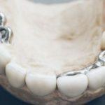 歯のかぶせ物にはどのようなものがあるの?~メリット・デメリット~