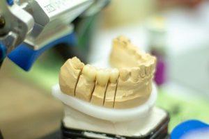 歯のかぶせ物には種類がある?~自分に合った歯を!~