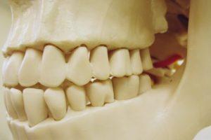 歯を失ってしまったらどうしたらいいの?~ブリッジの適用について~